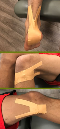 Leukotape Taping