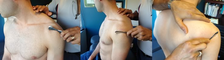 Innovative Chiropractor Tools