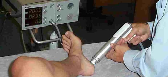 shockwave therapy for plantar fasciitis treatment